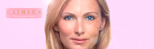 Mesoterapia Facial Antiaging - DermaForYou