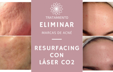 resurfacing laser co2 - marcas de acne