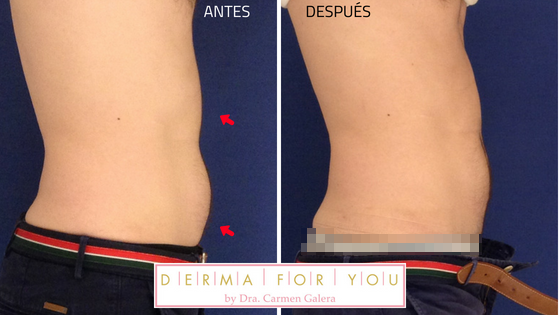 Resultados de CoolSculpting
