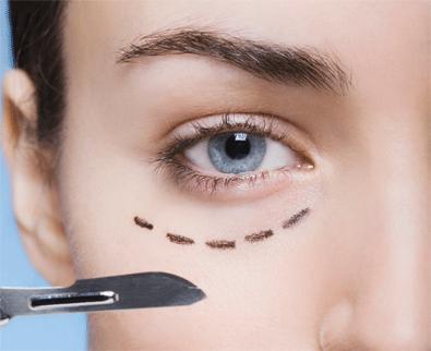Cirugía estética ocular - bolsas oculares