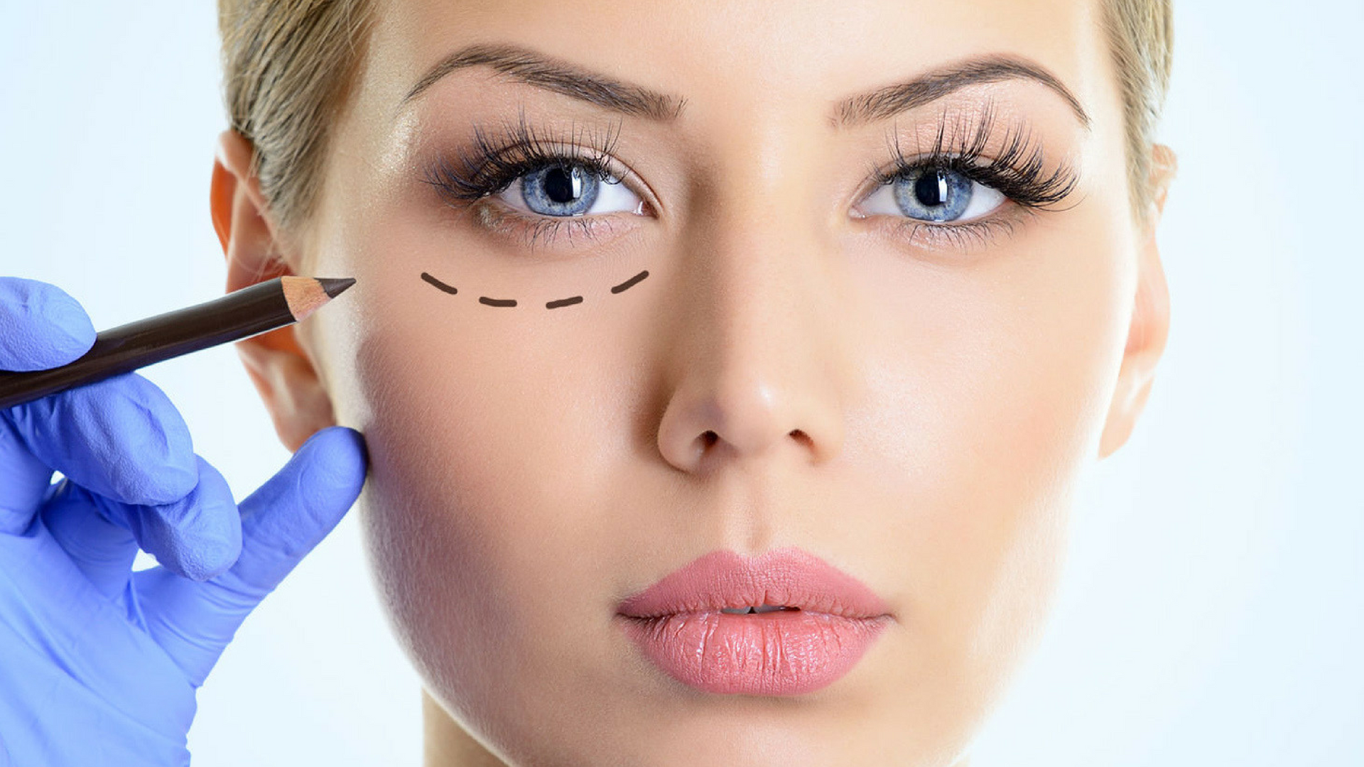 Blefaroplastia - Cirugía Ocular
