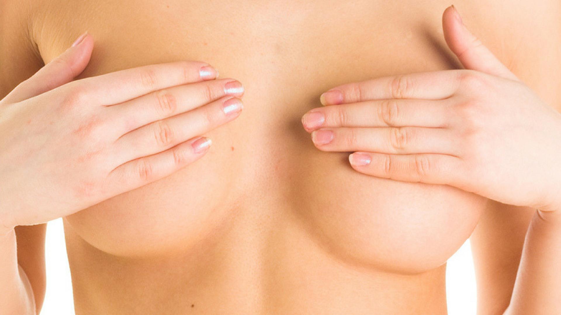 Mastopexia - Elevación de senos