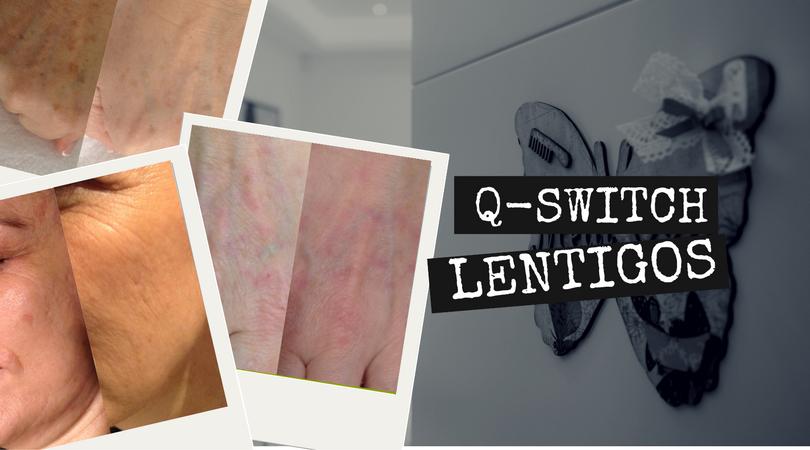 Q-Switch RevLite para lentigos