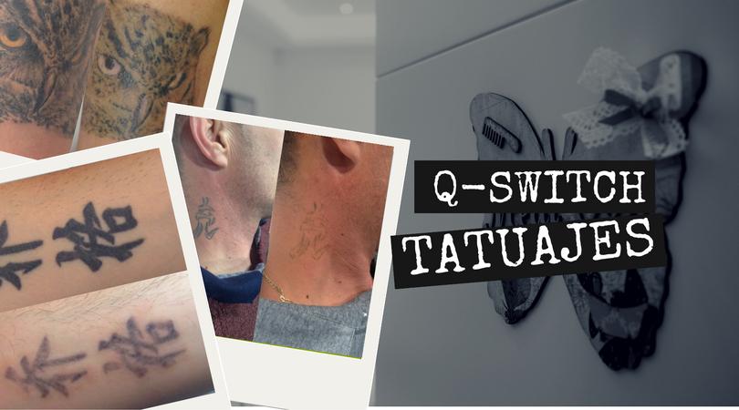 Q-Switch RevLite para tatuajes