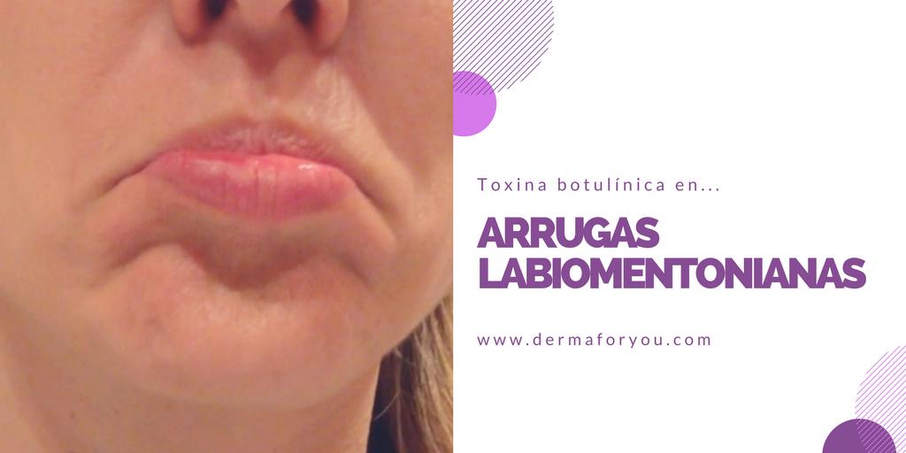 Toxina Botulínica - Arrugas Labiomentonianas