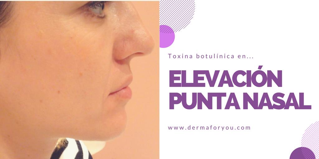 Toxina Botulínica - Elevación de la punta nasal