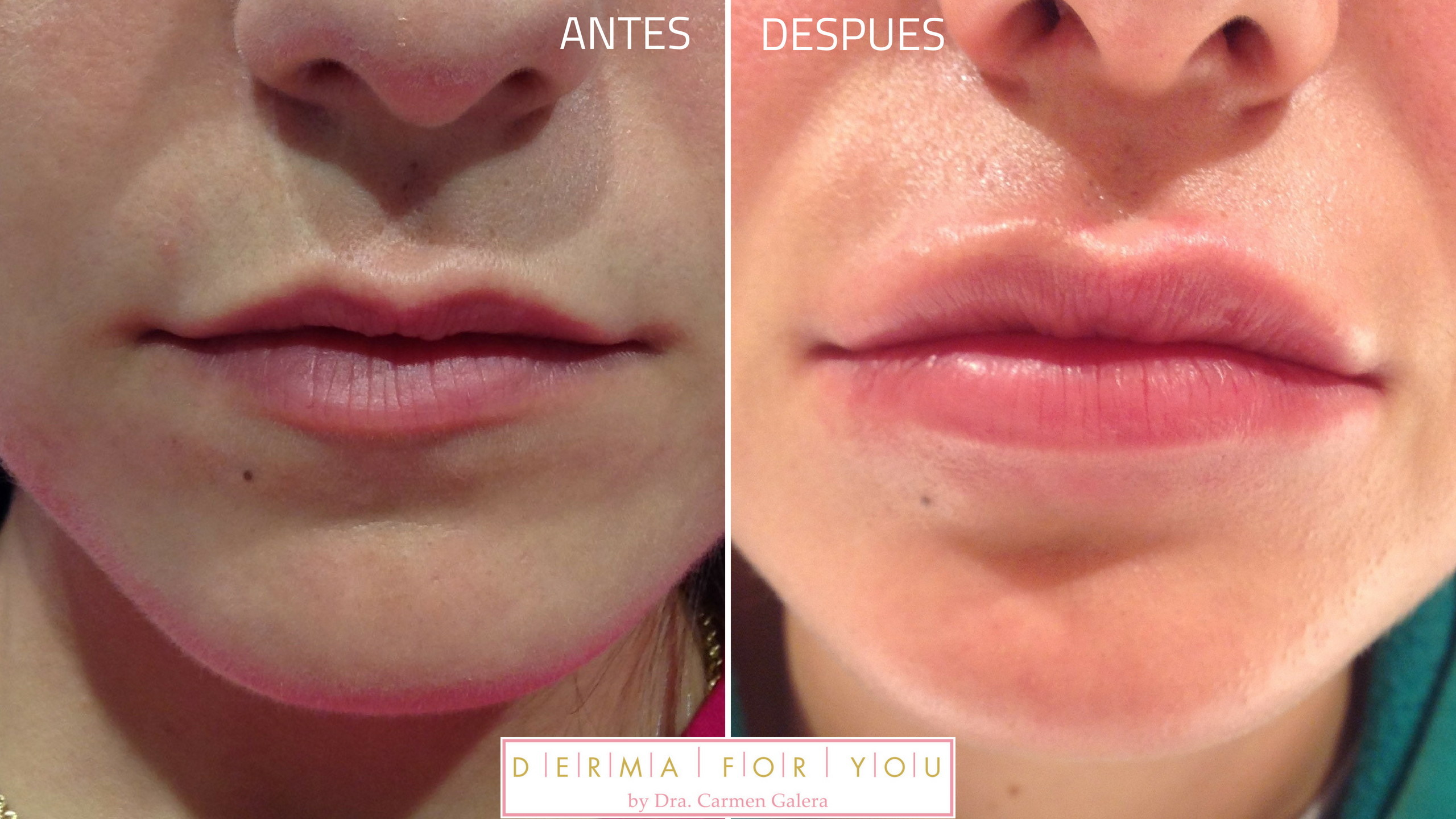 antes y despues de Relleno de labios con acido hialuronico