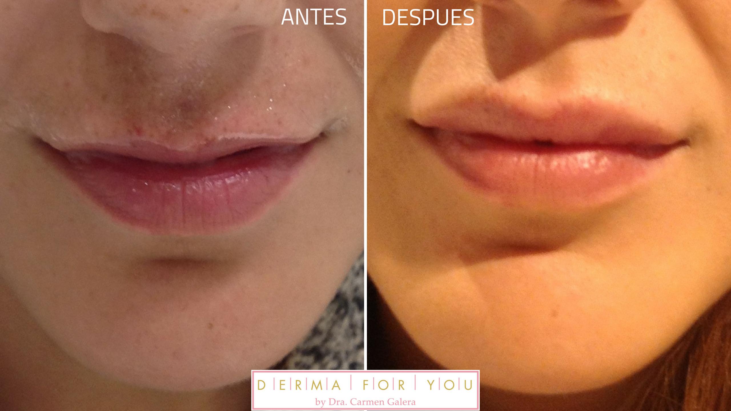 resultados relleno de labios - acido hialuronico
