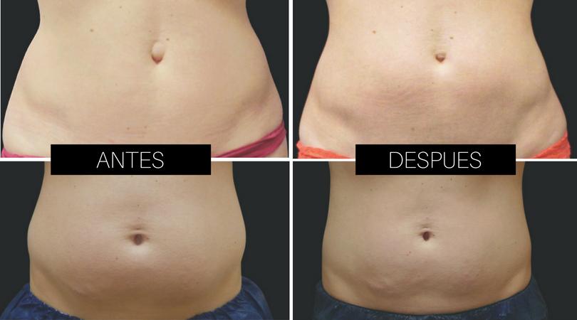 CoolSculpting - Eliminación de grasa del abdomen