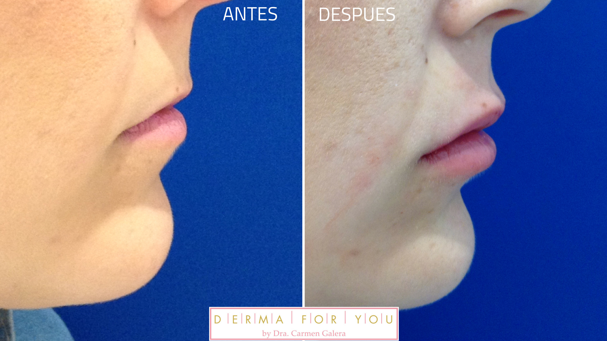 Rellenos Ácido Hialurónico - Labios