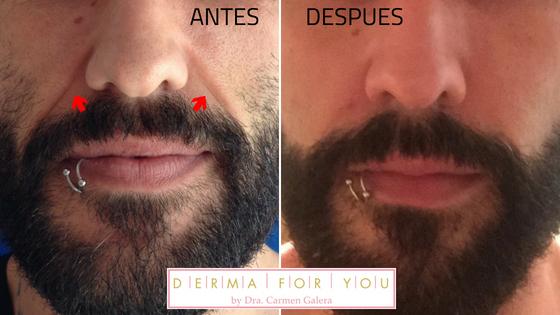 Antes y después Ácido Hialurónico - Voluma