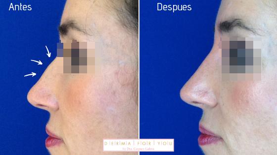 Relleno de nariz con ácido hialurónico - Dermaforyou