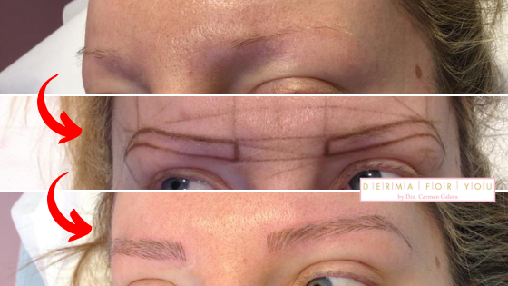 Microblading - Tratamiento de cejas despobladas - Dermaforyou