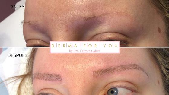 Microblading - Tratamiento de cejas - Dermaforyou
