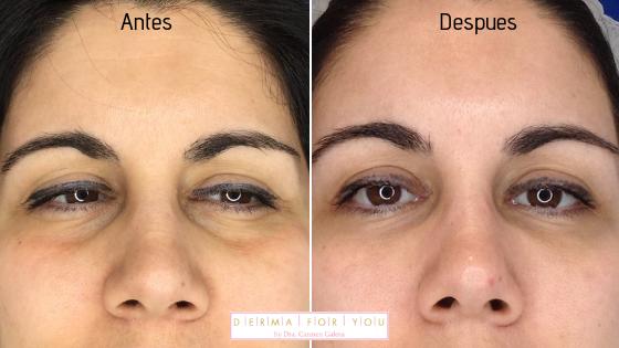 Tratamiento de ojeras y bolsas con Redensity 2 - Dermaforyou