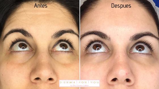 Resultado del tratamiento de ojeras y bolsas con Redensity 2 - Dermaforyou