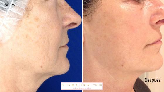 Sistema Skinlayer con ipl y peeling para manchas - perfil derecho - Dermaforyou