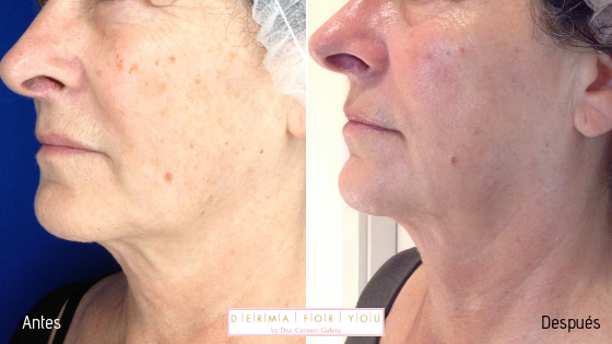 Sistema Skinlayer con ipl y peeling para manchas - perfil izquierdo - Dermaforyou