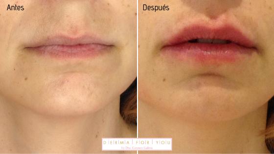 Relleno de labios con ácido hialurónico filler de croma - Dermaforyou