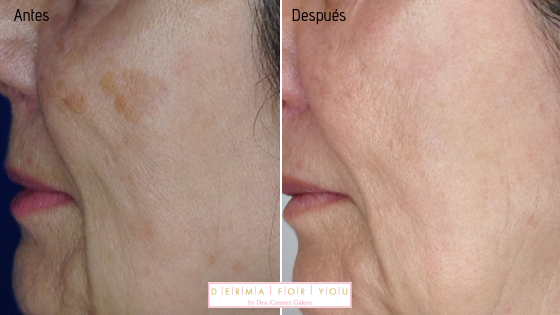 Sistema Skinlayer con IPL + Q-Switched para manchas faciales - Dermaforyou
