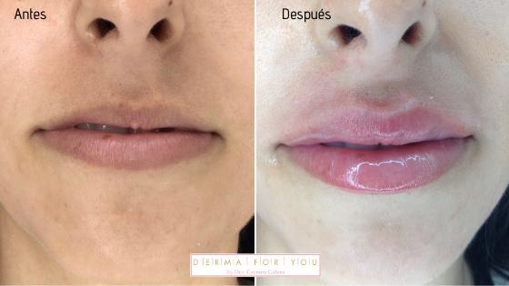 Relleno de labios para un resultado perfecto - Dermaforyou