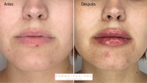 Ácido hialurónico para labios - Dermaforyou