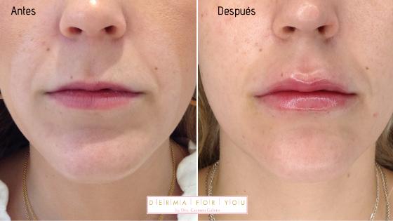 Rellenos para labios finos - Dermaforyou