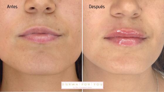Rellenos de labios con resultados naturales - Dermaforyou