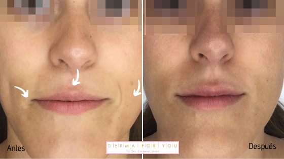 Rellenos para labios y surco nasogeniano - Dermaforyou