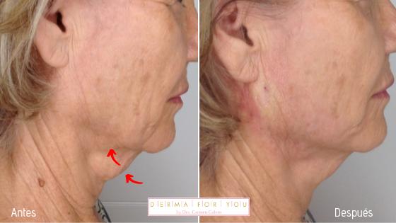 Flacidez en el cuello con Hilos Anchor de Croma Pharma - Dermaforyou