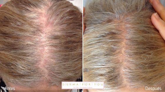 Alopecia androgénica femenina - Dermaforyou