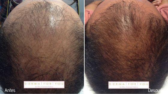 Alopecia androgénica masculina - Dermaforyou