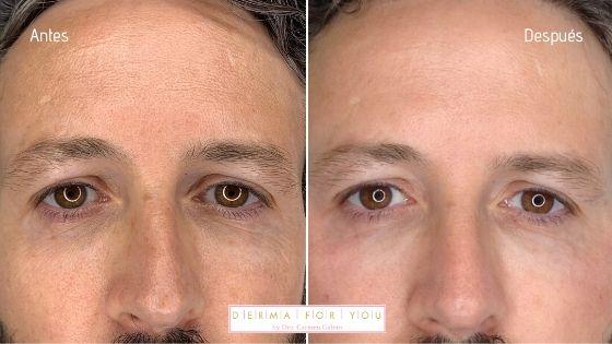 Mesoterapia facial antiaging - Ácido Hialurónico de Croma Pharma - Dermaforyou