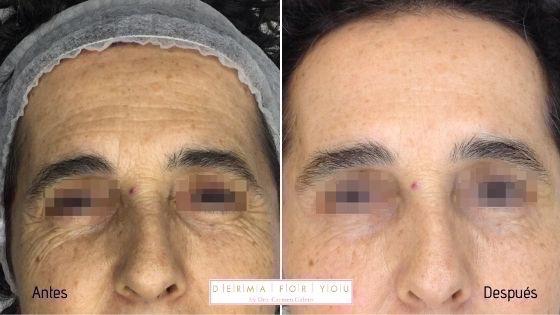 Rejuvenecimiento facial con Vistabel y Voluma - Dermaforyou