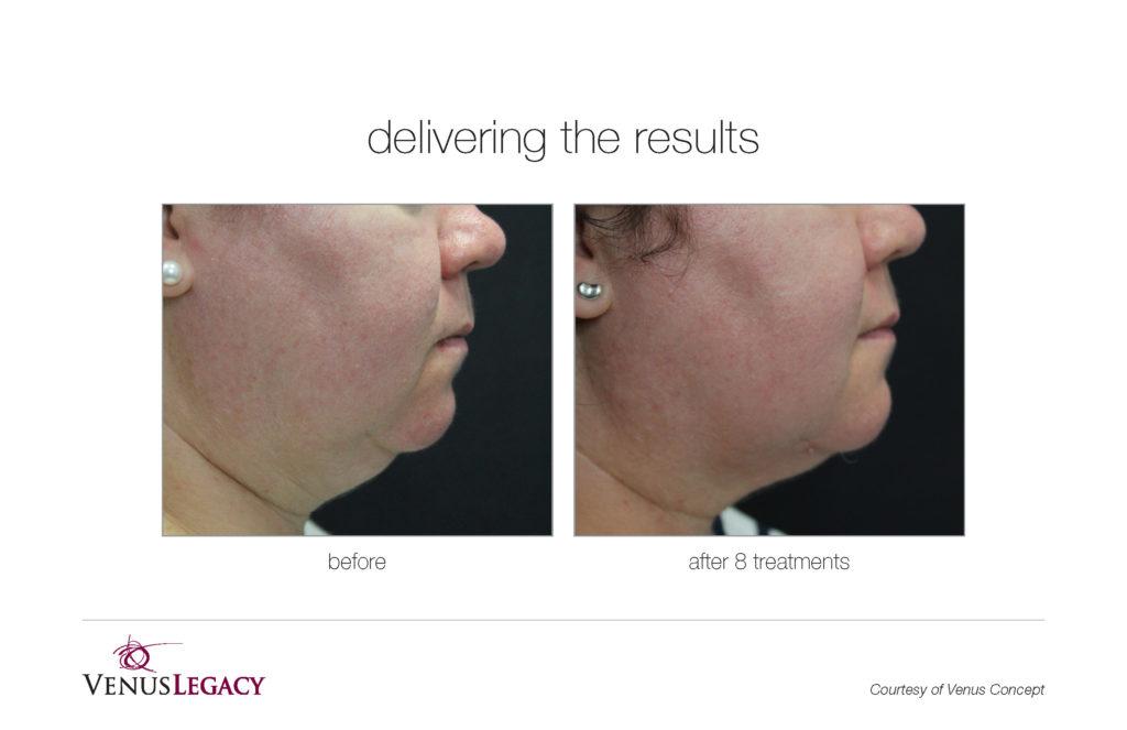 Resultados Venus Legacy remodelacion facial - Dermaforyou
