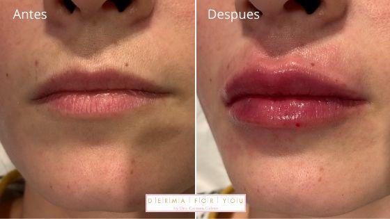 Resultados aumento de labios - Dermaforyou