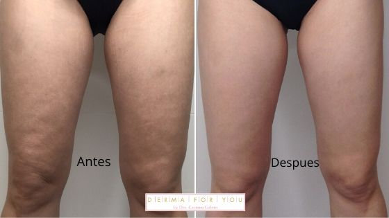 Mis resultados del tratamiento anti celulitico - Venus Legacy - Dermaforyou