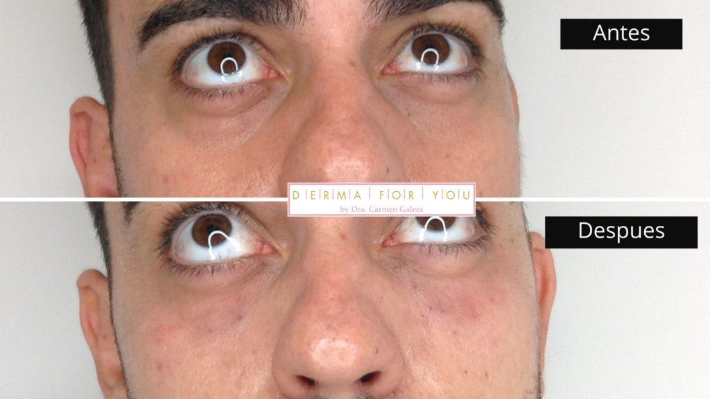 Tratamiento de ojera con ácido hialurónico Volbella - Dermaforyou