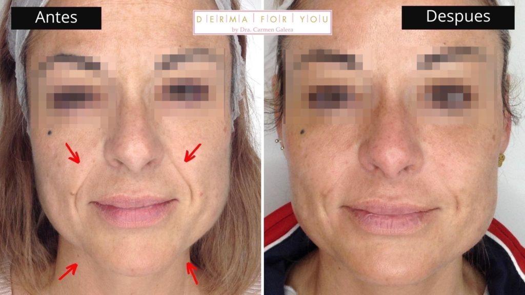 Botox y ácido hialurónico para surco nasogeniano - Dermaforyou