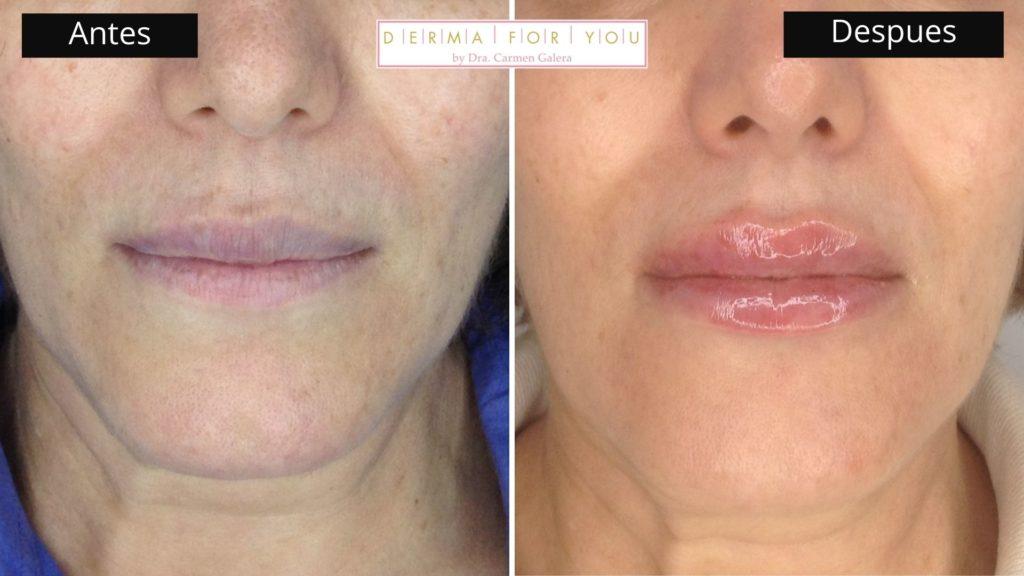 Ácido Hialurónico Volift en labios - Dermaforyou