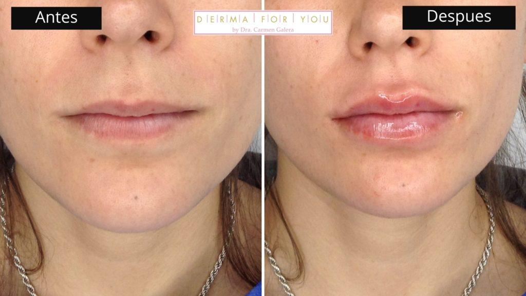 Ácido Hialurónico Volvella de Allergan para labios finos - Dermaforyou
