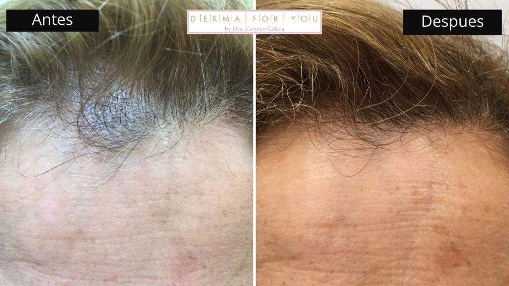 Tratamiento de alopecia (frente) - Dermaforyou