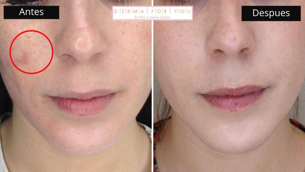 Sistema Skinlayer - Tratamiento de marcas de acné boxcar (frente) - Dermaforyou