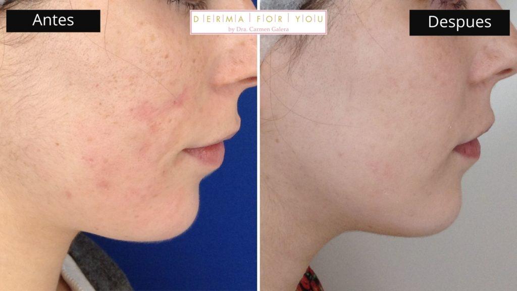 Sistema Skinlayer - Tratamiento de marcas de acné boxcar (perfil dcho) - Dermaforyou