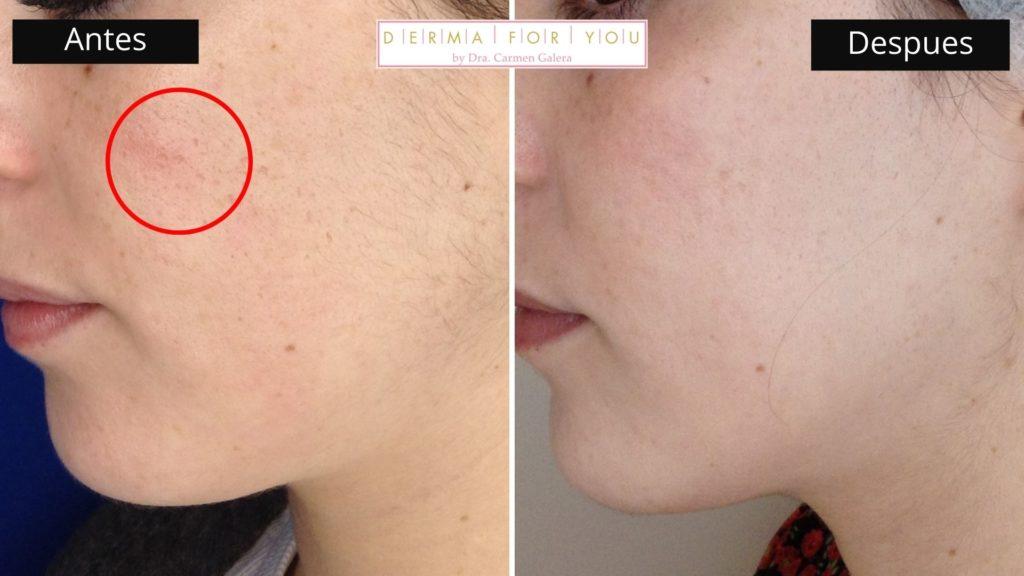 Sistema Skinlayer - Tratamiento de marcas de acné boxcar (perfil izq) - Dermaforyou