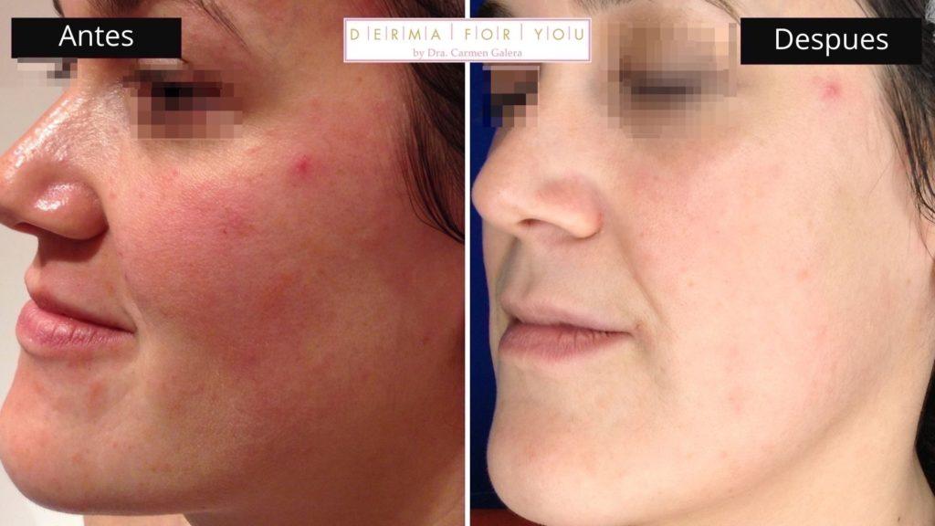 Tratamiento de rosácea (perfil dcho) - Dermaforyou