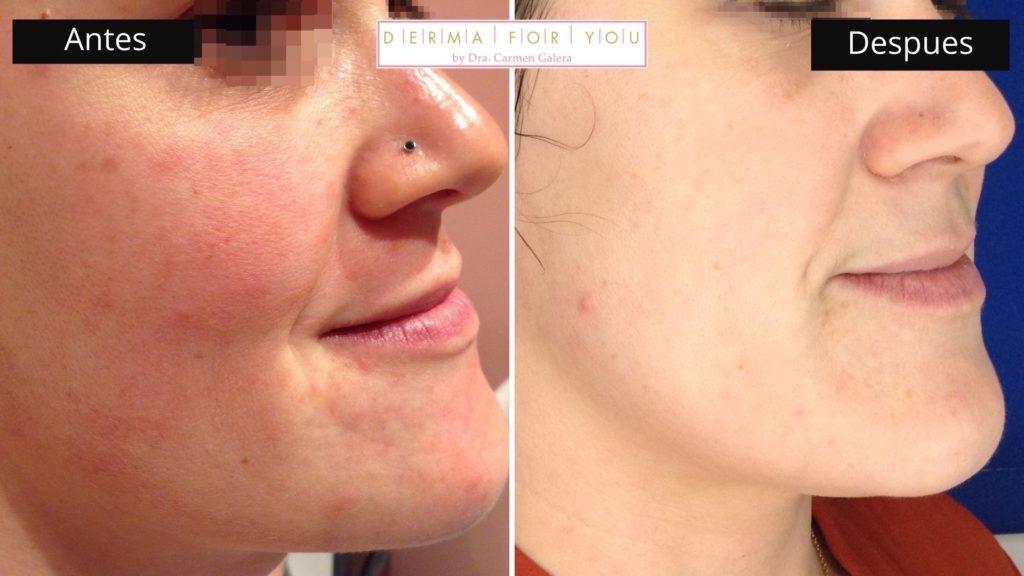 Sistema Skinlayer - Tratamiento de rosácea (perfil izq) - Dermaforyou