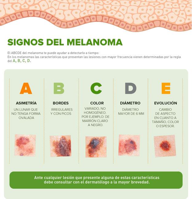 Regla del ABCDE - Signos del melanoma