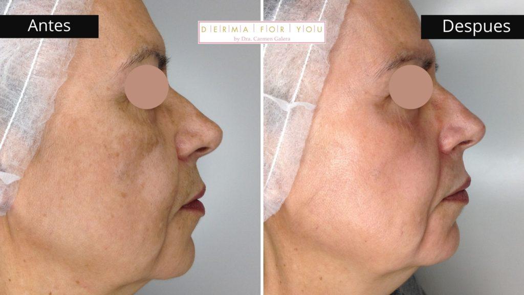 Sistema Skinlayer para melasma - Dermaforyou by Dra Carmen Galera