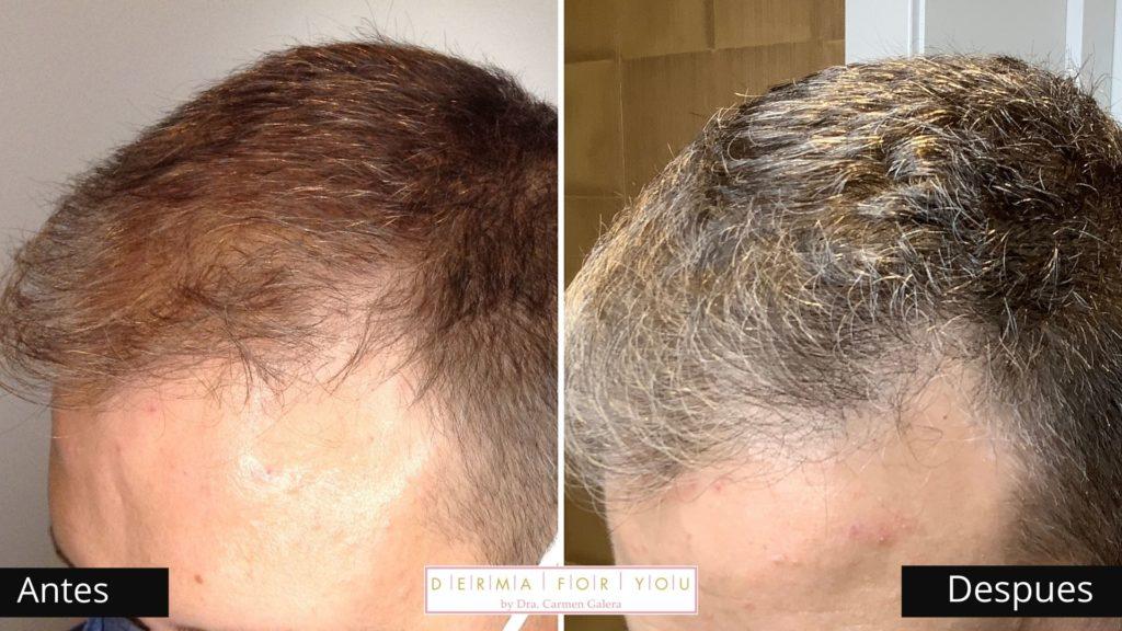 Tricologo - Problemas de cabello - Dermaforyou